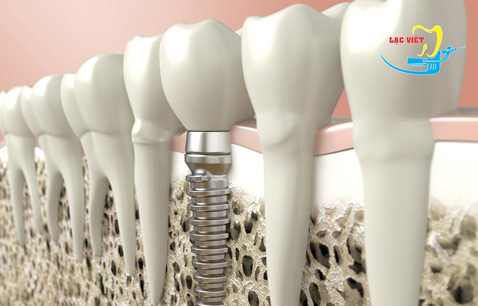 công nghệ làm răng giả mới nhất