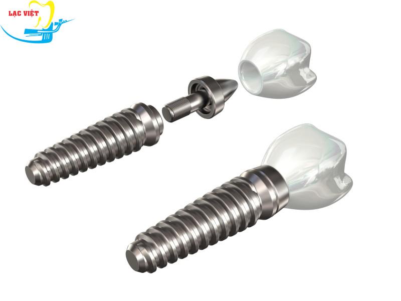Khái niệm implant là gì?