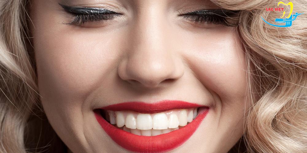 Điểm mạnh của cấy răng implant là gì?