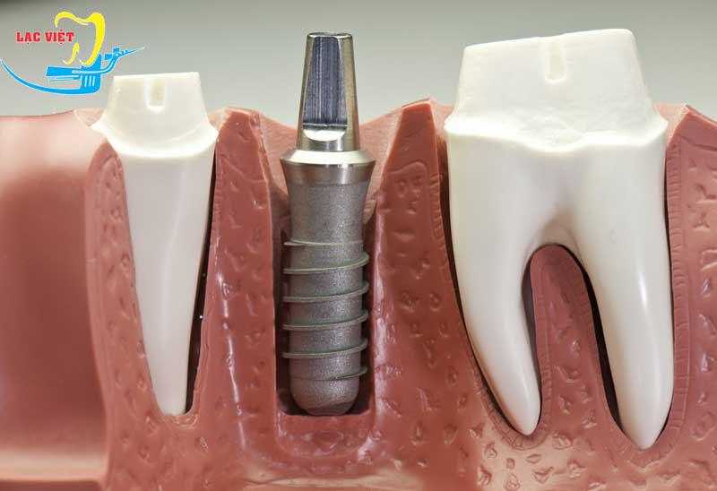 trong quy trình trồng răng implant: Đặt trụ implant và phục hình răng tạm.
