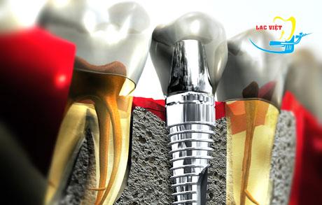 Các kỹ thuật ghép xương răng trong cấy ghép implant.