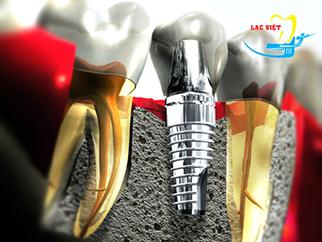 Trồng răng hàm số 7 bằng phương pháp cấy implant có tốt không?