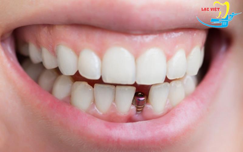 Điểm yếu của mini implant