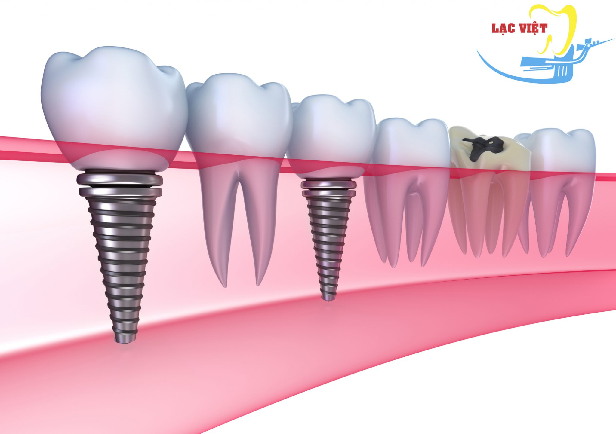 Cấy Ghép Răng Implant ở đâu TỐT và không đau đớn