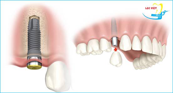trồng răng implant với nhiều ưu điểm vượt trội