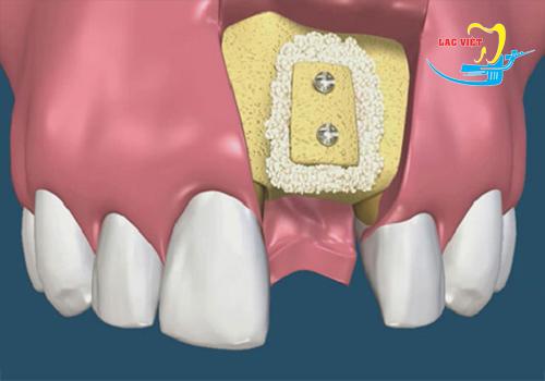 Tiến hành ghép xương răng