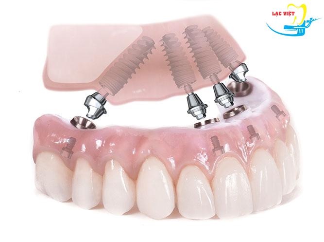 Làm răng giả implant