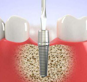 Thực hư tình trạng kích ứng sau cấy răng Implant- Có thể bạn nên đọc