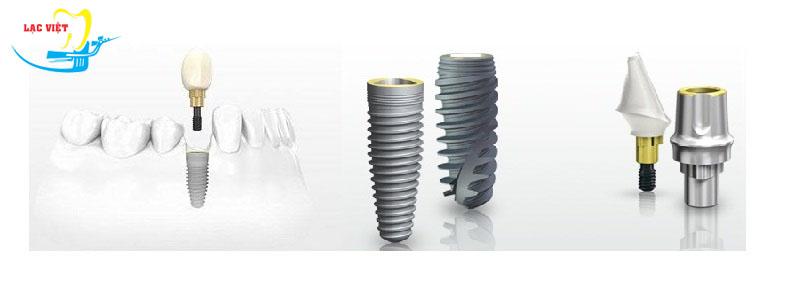 Kinh nghiệm làm răng implant khi lựa chọn trụ Implant