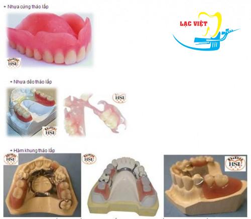 trồng răng giả tháo lắp sử dụng được bao lâu?