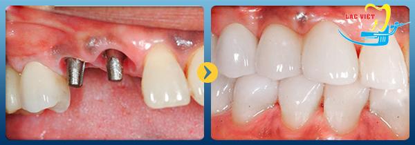 bước cuối cùng Quy trình cắm implant không gây đau đớn tại nha khoa Lạc Việt