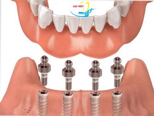 vấn đề Cắm Implant có bị đau về sau không