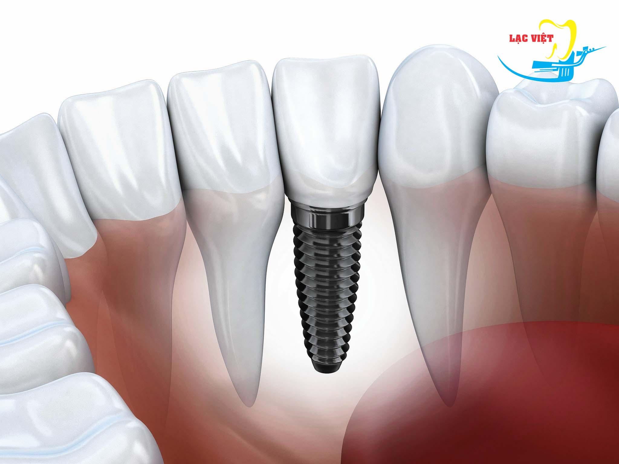 Nếu trồng răng giả tháo lắp không phải là lựa chọn tối ưu thì đâu mới phương pháp phục hình răng tốt nhất