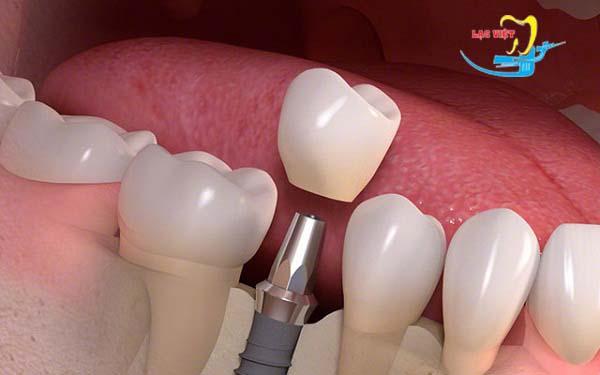 Thường thì thời gian làm răng implant mất bao lâu?