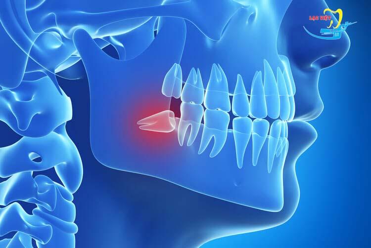 Quá trình mọc răng khôn đau trong bao lâu