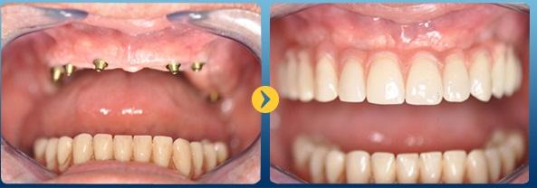 Răng giả tháo lắp sử dụng được bao lâu