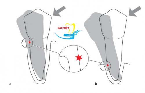 Giai đoạn 3: Tình trạng răng bị phá hủy của bệnh viêm nha chu chân răng