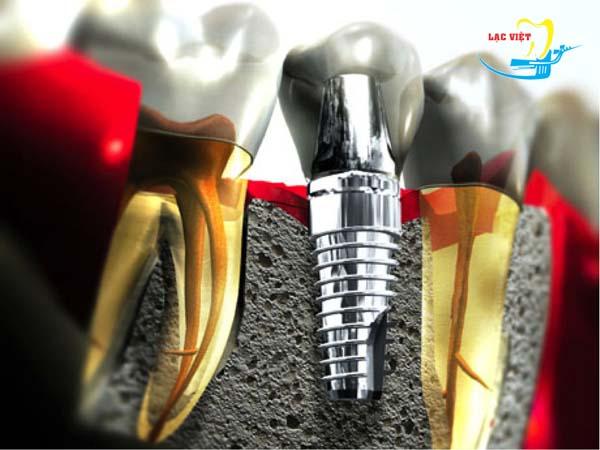Thông thường thời gian làm răng implant mất bao lâu?