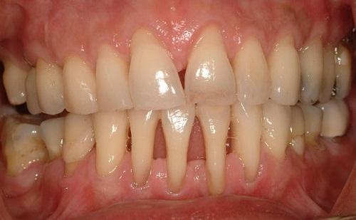 viêm nha chu chân răng