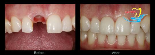 Có nên trồng răng sứ hay không?