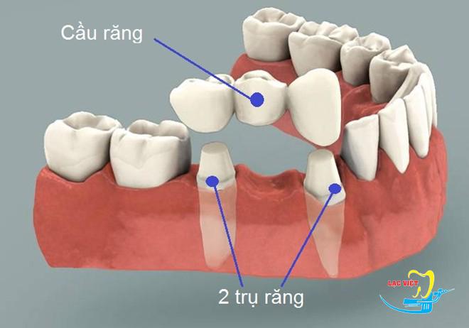 phân tích các phươn pháp trồng răng giả cố định