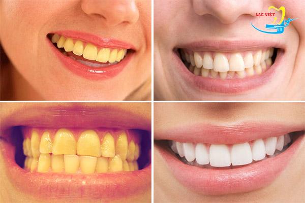 cách tẩy trắng răng khi răng bị vàng