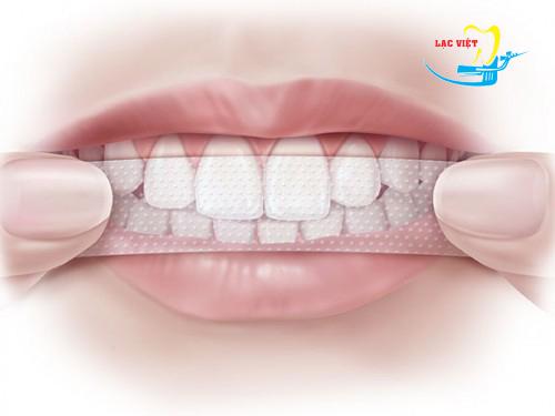 làm rõ trắng răng có gây hại hay không