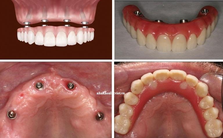 kỹ thuật trồng răng implant mới nhất