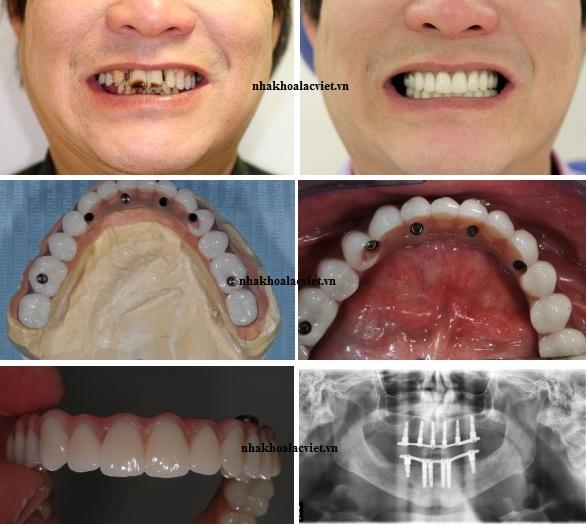 Làm răng implant
