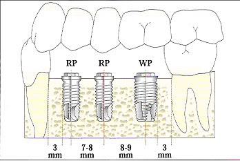 Trồng răng implant được bao lâu?