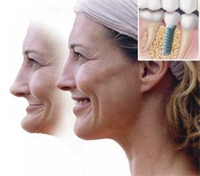 Nhổ răng bao lâu thì trồng được răng implant.