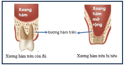 Kỹ thuật nâng xoang trong cấy ghép implant
