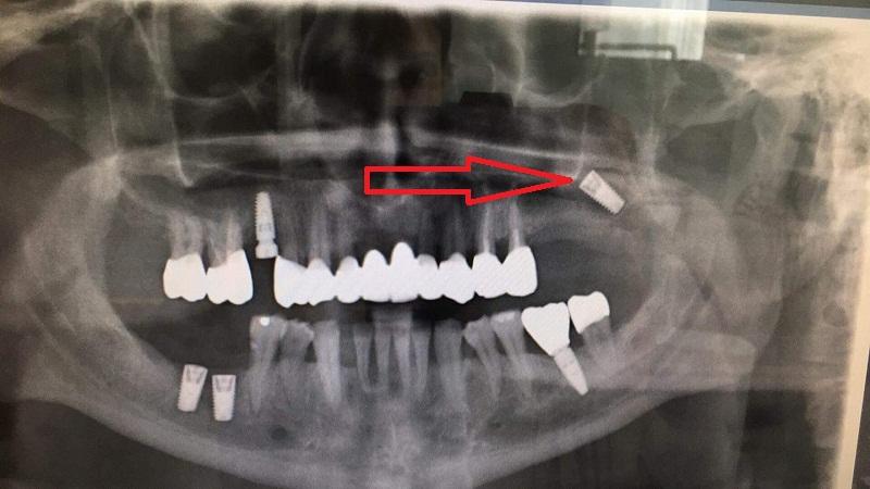 implant rơi vào xoang.