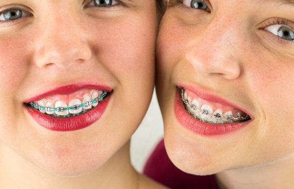 Cách khắc phục cười hở lợi không phẫu thuật.