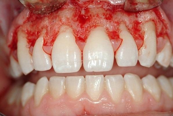 Phẫu thuật cười hở lợi.