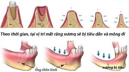 nhổ răng bao lâu thì trồng được implant