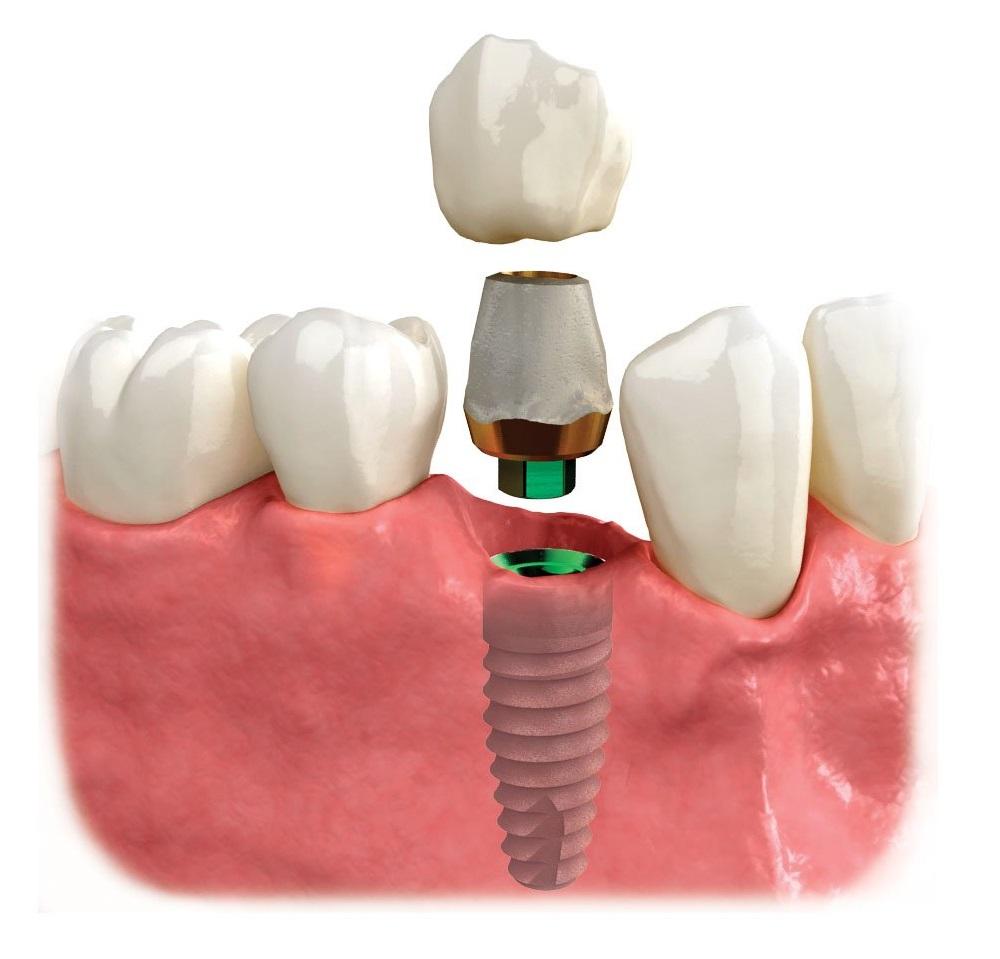 răng sứ trên implant gắn xi măng