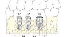 Cấy ghép xương hàm trồng răng implant là gì?
