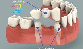 Tìm hiểu công nghệ CT 5 chiều bắc cầu răng nhanh không