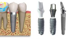 Giá làm răng implant là bao nhiêu?