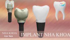 Cùng phân tích những trường hợp nào có thể ghép răng Implant nhanh nhất