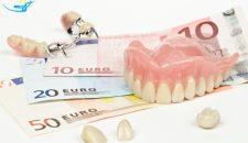 Mức giá trồng răng implant là bao nhiêu tại nha khoa Lạc Việt