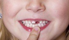 Trồng implant răng cửa nên lựa chọn loại nào?