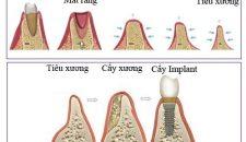 Cấy ghép xương hàm trong cấy ghép implant: những điều cần biết