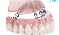 Hãy làm răng giả implant ngay khi có thể