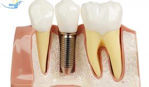 Cắm implant có đau không- Nhận định từ chuyên gia