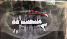 Biến chứng implant rơi vào xoang – một trường hợp lâm sàng.