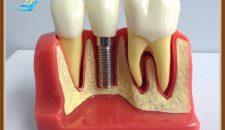 """Thực hư vấn đề """"Làm răng implant tại sao lại đắt"""""""