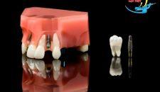 Thực sự thì trồng răng implant có nguy hiểm không?