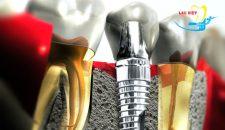 Sự khác nhau giữa các loại răng implant.